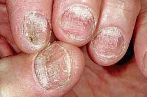 Лечение псориаза при помощи алоэ