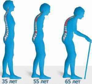 остеопороз, алоэ вера