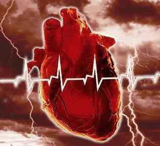 Инфаркт миокарда, алоэ, алоэ вера