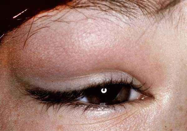 Дакриоаденит - воспаление слезной железы глаз