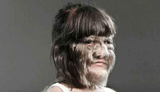 Гипертрихоз - чрезмерный рост волос