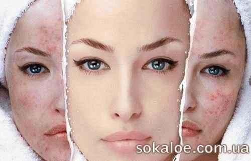 лицевой клещ