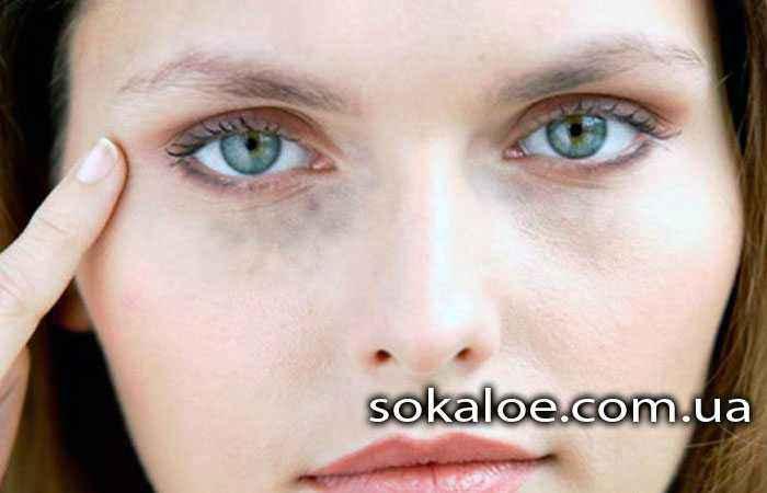 Paralich-Bella-Shokirujushhie-fakty-o-paraliche-licevyh-myshc