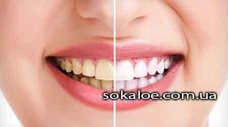 Kak-sdelat-zuby-belymi-v-domashnih-uslovijah